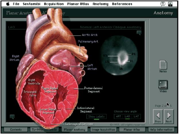 Mit dieser Darstellung und Aufteilung eines Herzens wird die Navigation durch bestimmte Themenbereiche ermöglicht (© Patrick J. Lynch, Yale University School of Medicine).